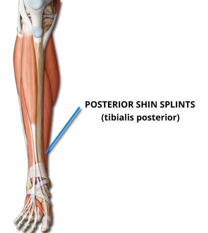 Posterior Shin Splints